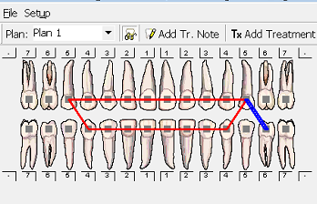Orthodontic Chart with Elastics